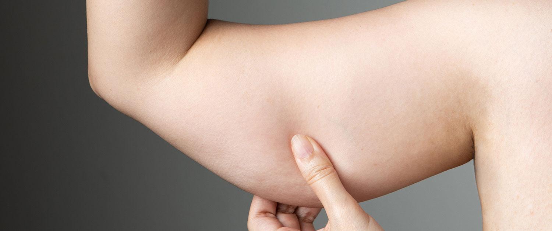 kolda-liposuction-op-dr-can-isler